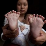 Baby born with 31 fingers, toes, parents seek help (Photo)