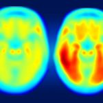 Research finds levels of tau protein better predicts Alzheimer's