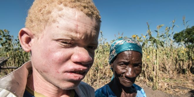 Malawi: Albino Deaths for Body Parts On the Rise, Report