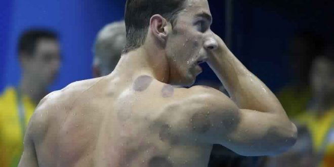Michael Phelps Leads the Rio Cupping Craze (Photo)