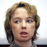 Isabelle Dinoire: Woman who received first face transplant dies at 49