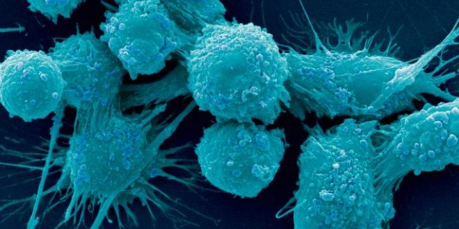 Prostate cancer scientists find genetic fingerprint identifying how; when disease spreads
