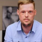Face transplant helps Andy Sandness with second chance at life