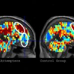 Researchers develop program to identify suicidal thoughts