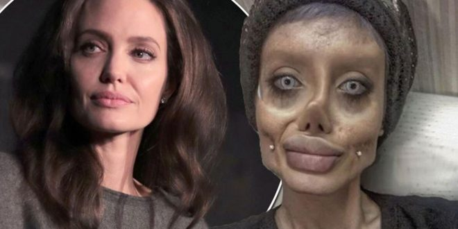 Teen has 50 surgeries to look like Angelina Jolie (Photo)