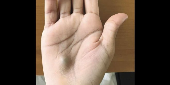 Canada: Guy finds bulging lump on his hand after dentist trip